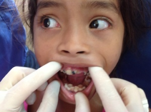 Many children with serious tooth decay